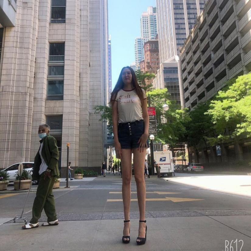 As Renee looks bad, the owner of the longest legs in the world