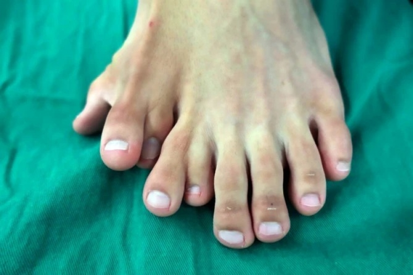 Happiness is never too much: the Chinese have long lived with 14 toes, considering the anomaly of happy sign