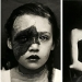 Portraits of pain: striking photographs of patients from nineteenth-century suffering from serious illnesses