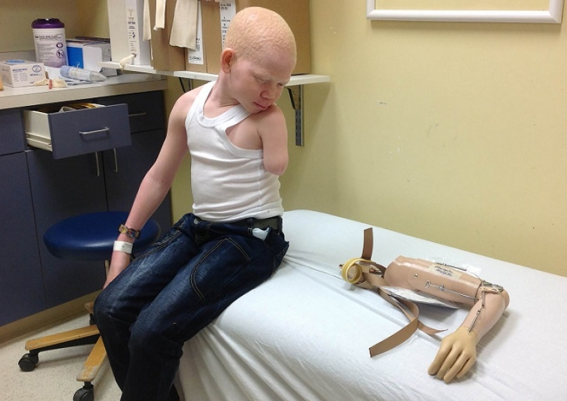 Tanzanian albinos, whose bodies are worth more than gold