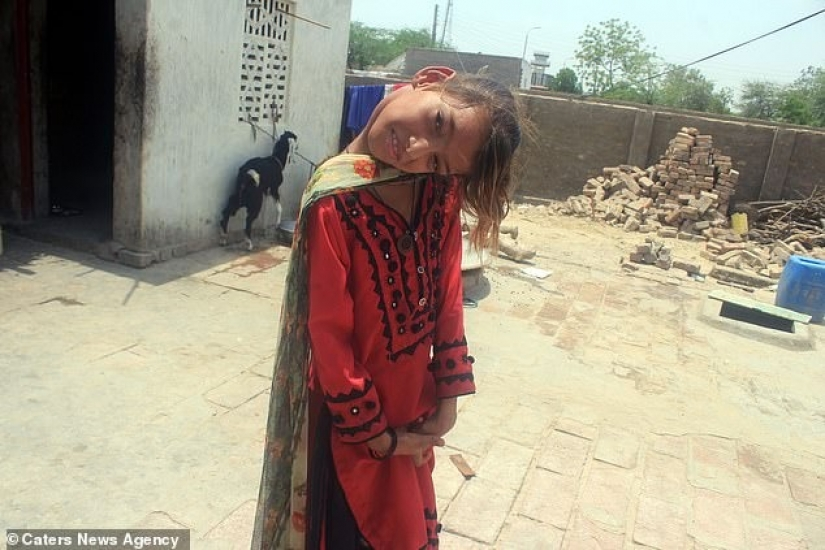 The world is at a right angle: neck 11-year-old Pakistani turned 90 degrees