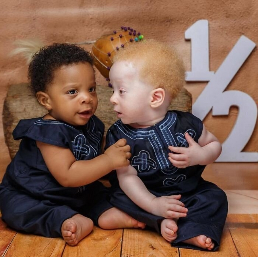 What is the secret of twins with different skin colors from Nigeria