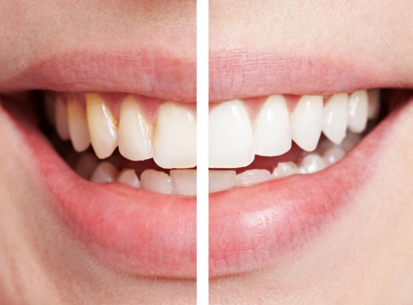 9 easy ways to make your smile white