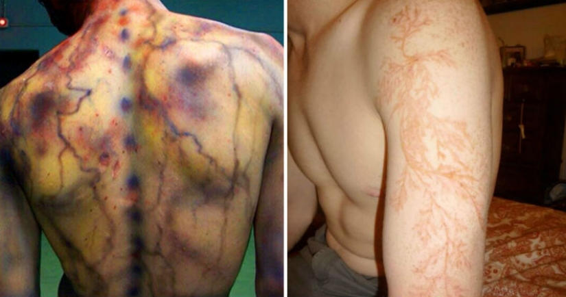 After discharge: what happens to a man who was struck by lightning